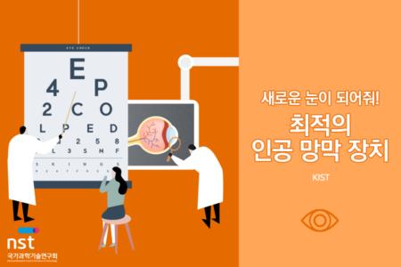 nst_retinal implant